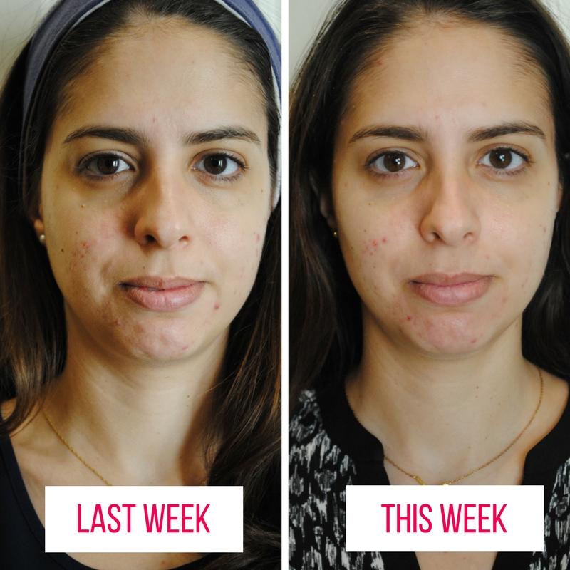 Day 1 & Day 8 | My Acne Story | Gitana Styling